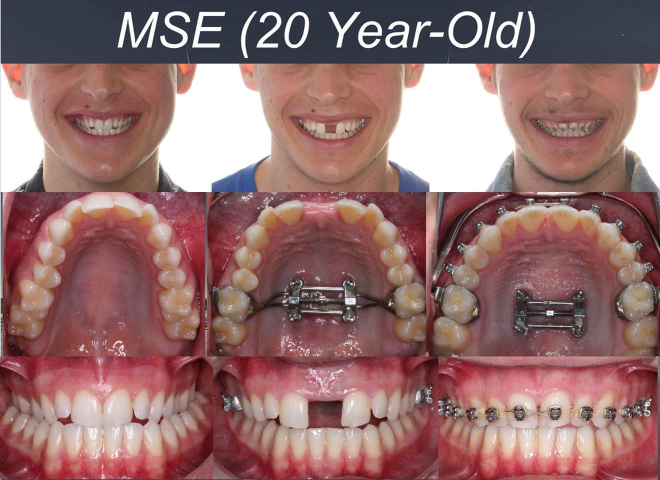 MSE Orthodontic Appliance bangalore