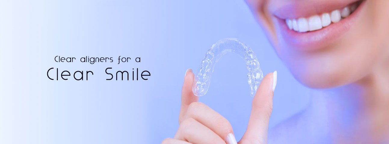 clear-aligners-bangalore