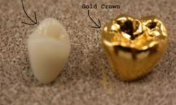 Golden Dental  Crowns