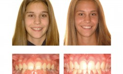 Before - After cases of Incognito Braces Treatment