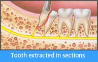Extraction of erupted tooth