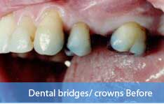 Before dental bridge treatment