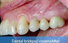 After dental bridge treatment