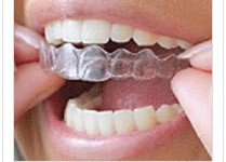 Insertion of invisible braces