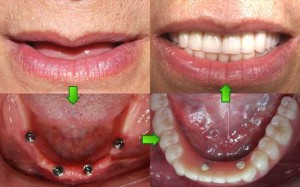 Dental Implants - Before After Images