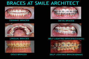 Orthodontic Braces Treatment At Smile Architect