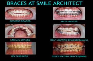 teeth braces in bangalore