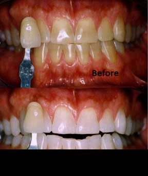 Teeth Bleaching - Before after